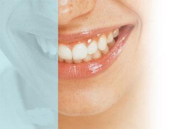 Quand la bouche et les dents parlent de spiritualité